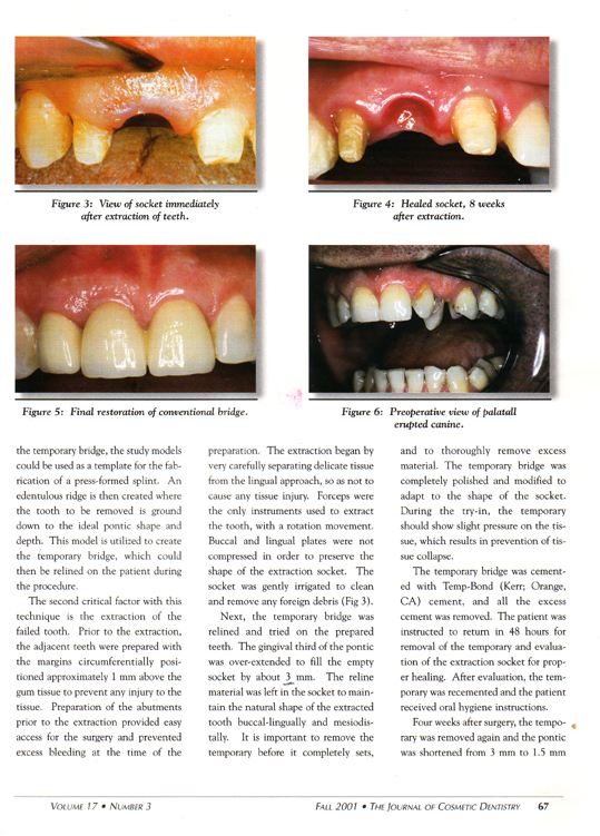 preservation-of-the-interdental-papilla-3