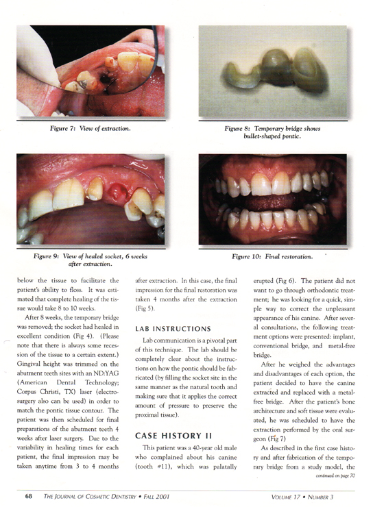 preservation-of-the-interdental-papilla-4